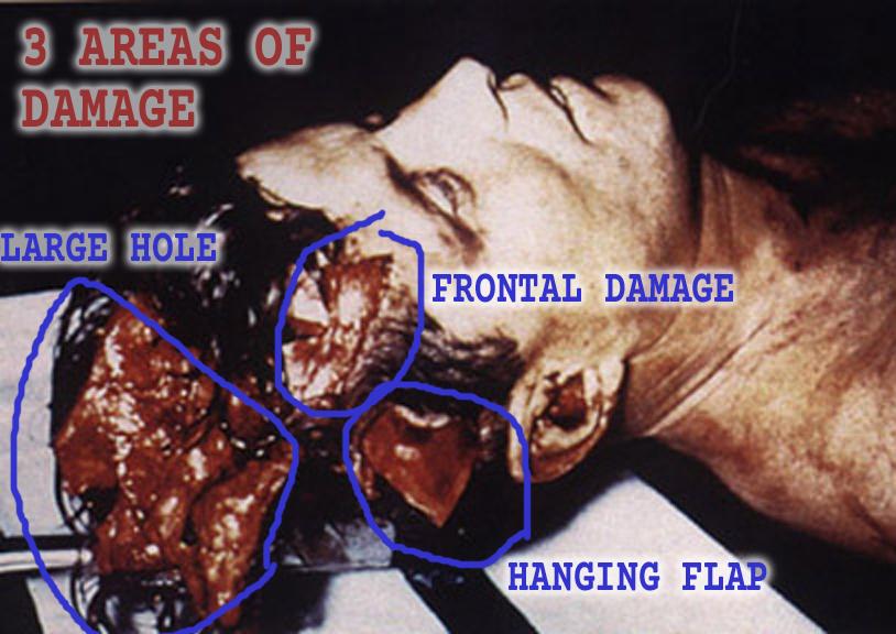 JFK_autopsy-damage-indicated