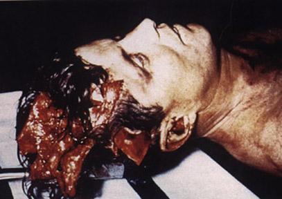 JFK_autopsy