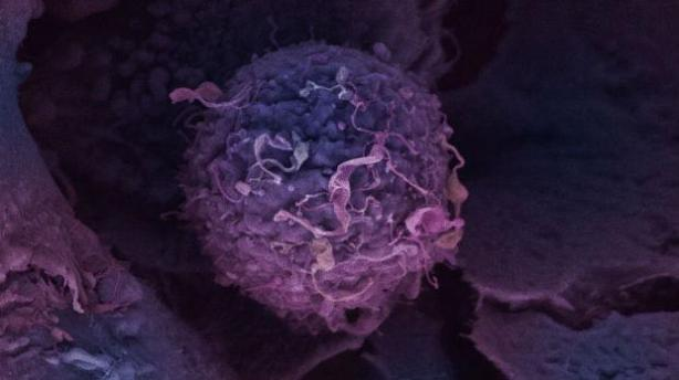 breast-cancer-cell