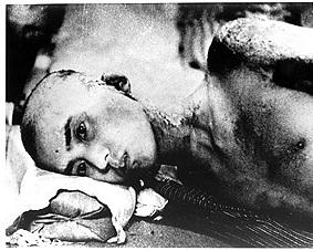 原爆広島・全身火傷、頭髪抜けた被ばく者