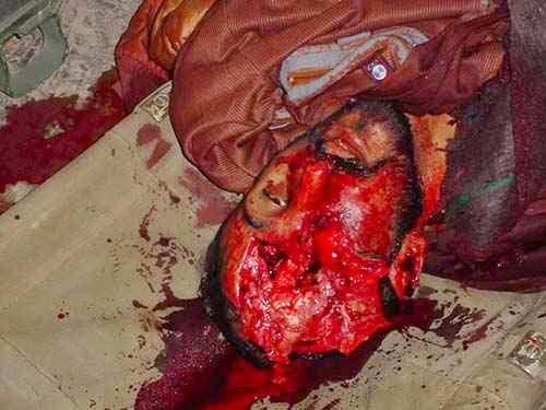 torture_abu_ghraib001