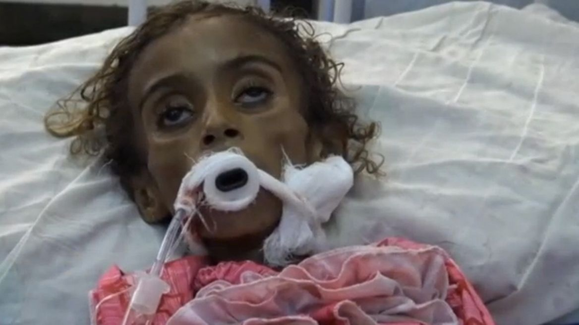 vid-yemen