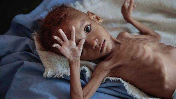 yemen-hunger-child-ap-ps-181121_hpMain_16x9_992